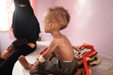 Faisal, 18 months old is treated for severe acute malnutrition at Sabeen hospital in Yemen's capital Sana'a. | Photo: UNICEF/UMI191723/Yasin