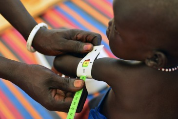 A health worker measures a baby girl's arm, at an outpatient therapeutic feeding centre at the Protection of Civilians site on the UN peacekeeping mission in South Sudan (UNMISS) base in Malakal, capital of Upper Nile State. Photo: UNICEF/Christine Nesbitt